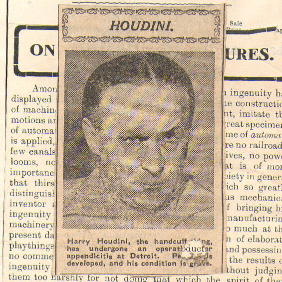 harry houdini undergone opperation